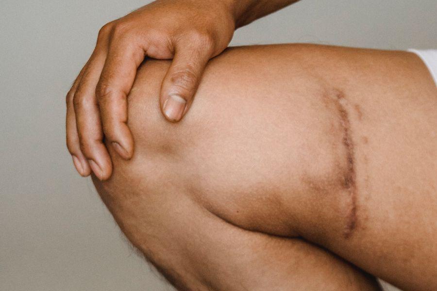 Laserterapia na cicatrização