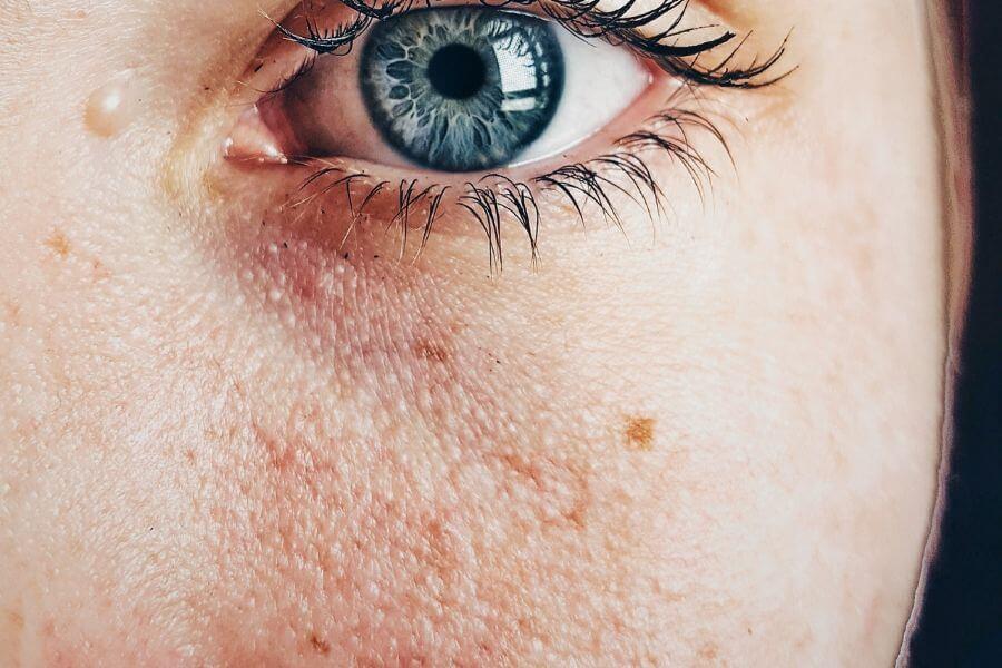 Entenda por que há tantos casos de câncer de pele no RS